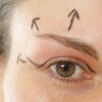 Chirurgia estetica del volto - Blefaroplastica