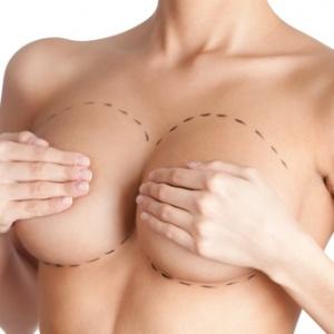 Chirurgia Estetica della regione mammaria