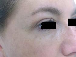 blefaroplastica superiore laterale post intervento