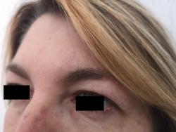 blefaroplastica superiore laterale pre intervento